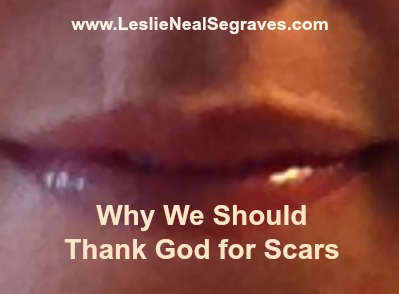 Why We Should Thank God for Scars